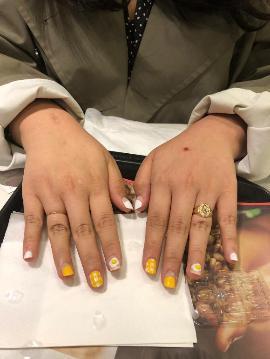 미니미니손톱